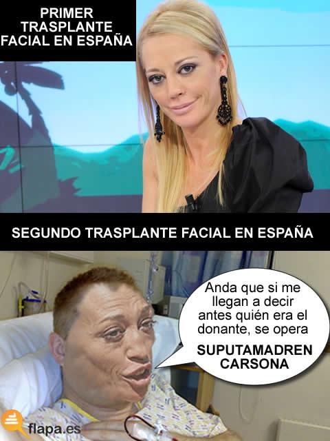 trasplante,facial,sevilla,virgen,rocio,hospital,belen,esteba,nueva,cara,operacion